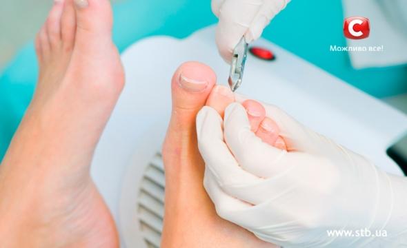 Вросший ноготь лечение