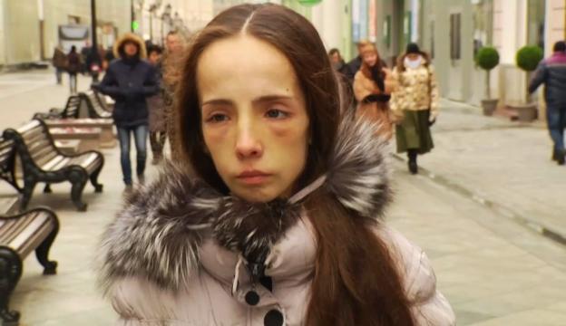 Девочка анорексия экстрасенсы